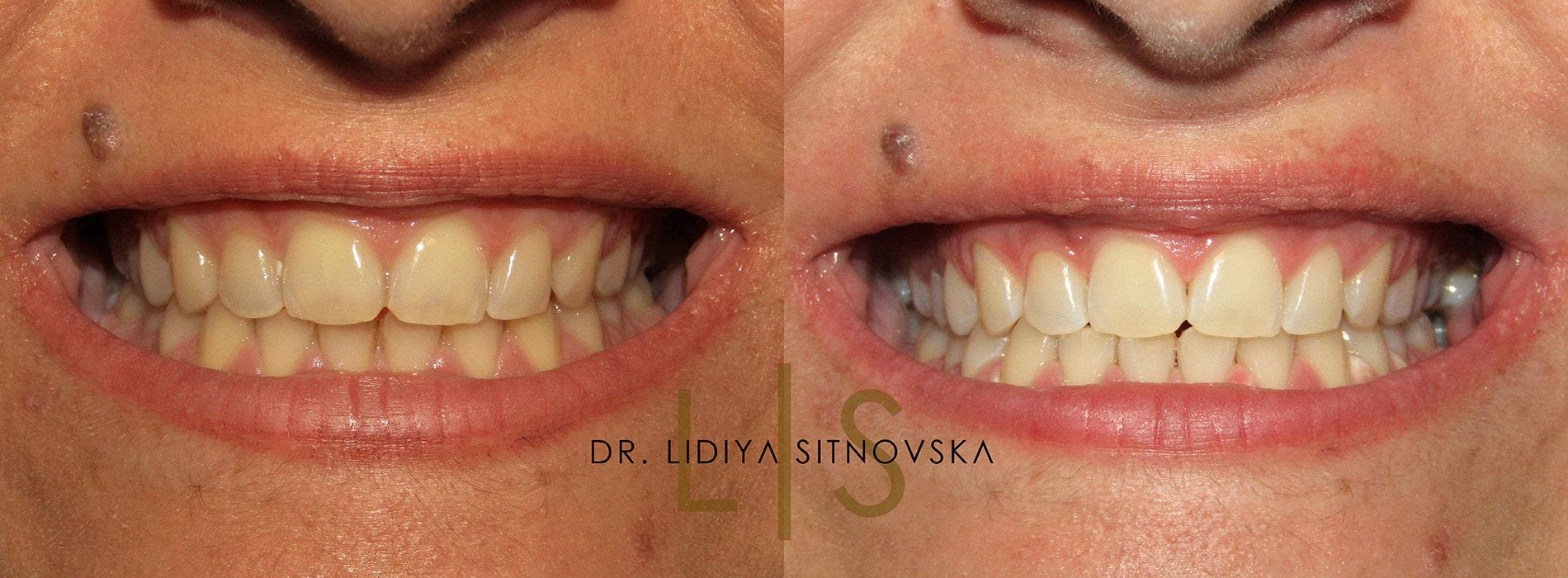Д-р Лидия Ситновска избелване