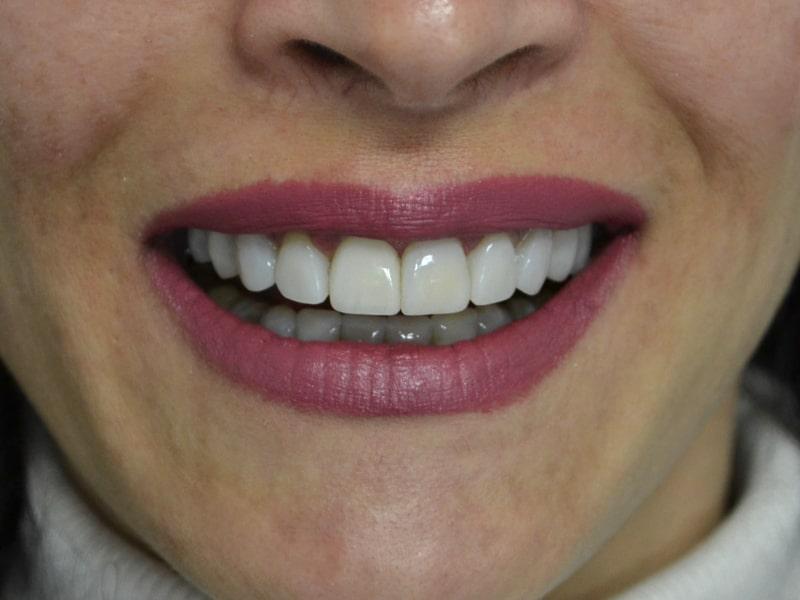 Д-р Лидия Ситновска какво е бондинг бели зъби