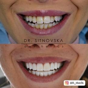 Д-р Лидия Ситновска бели зъби фасети бондинг