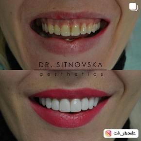 Д-р Лидия Ситновска бели зъби усмивка бондинг