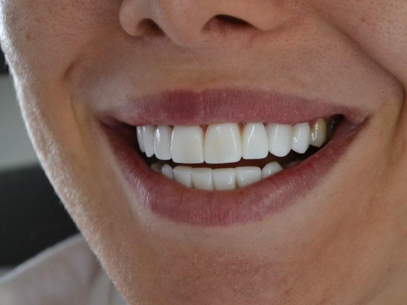 Д-р Лидия Ситновска бондинг бели зъби
