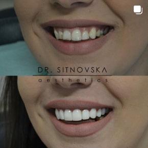 Д-р Лидия Ситновска-Станковска бондинг