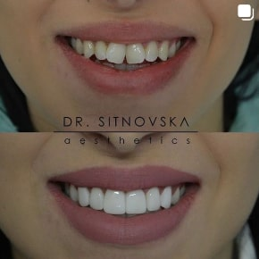 Д-р Лидия Ситновска-Станковска bonding